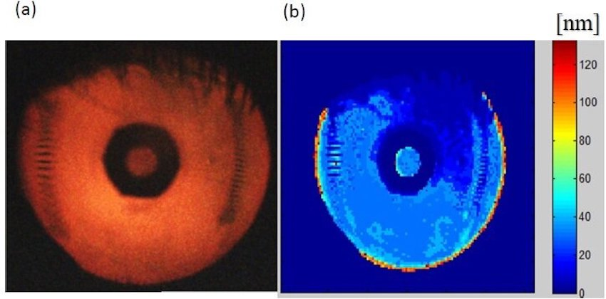 Eyes have it: tear film imaging