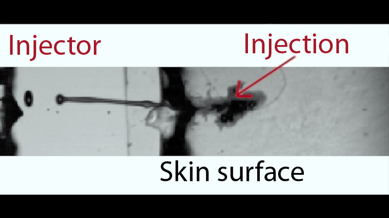 How the laser pulse-driven injectant passes through the skin into a patient's tissue.