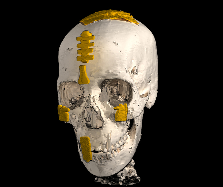 Yummy mummy: Skull image reconstructed as a hologram.
