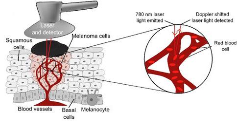 Laser Doppler probe is placed over a skin malignant melanoma.