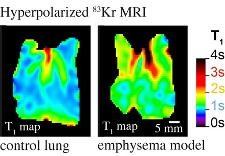 Hyperpolarization shows emphysema in rat model