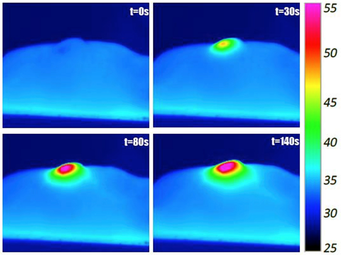 Infrared images show laser irradiation of nanotube-injected tutor in a mouse.