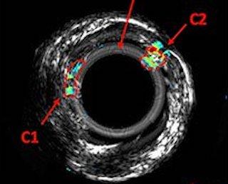 Imaging cholesterol: photoacoustic radar