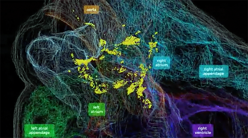 Heart of the matter: The 3D map revealed hitherto unknown complexity of the ICN. Click for more info.