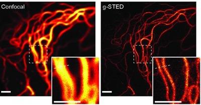 gSTED: fewer photons; even better resolution
