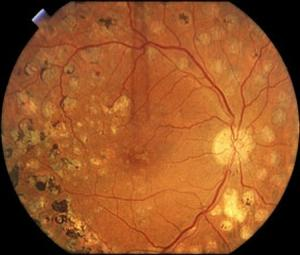 Retina treatment