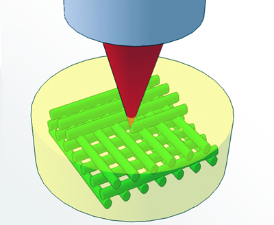 3D Photo-grafting technique: A laser shines into the hydrogel (yellow).
