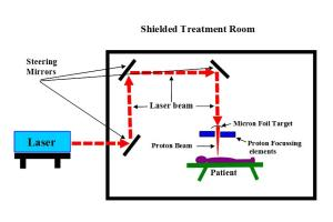 Laser proton therapy