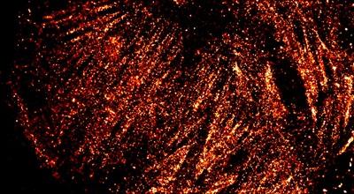 Super-resolved cytoskeleton