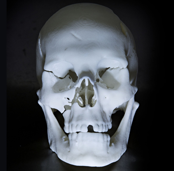 The laser generated skull revealed significant injuries Richard III sustained in battle.