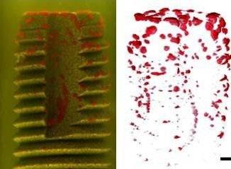 Bacterial imaging