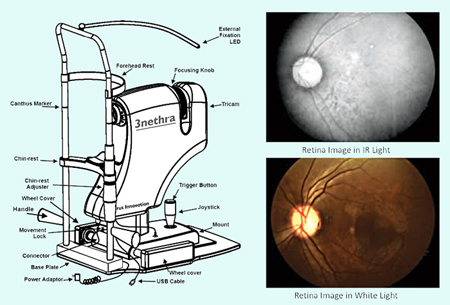 3nethra is a low cost, portable, and integrated ophthalmology device.