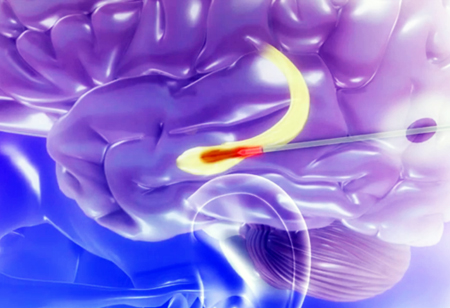 Minimally invasive laser-based surgery offers a quicker recuperation time for epilepsy patients.