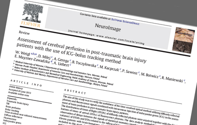 Published: NeuroImage journal.