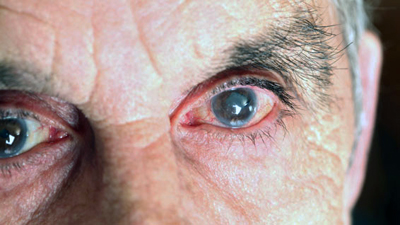 Laser treatment of cataracts