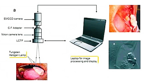 Non-invasive spectral imaging system enables mass screening for oral cancers.