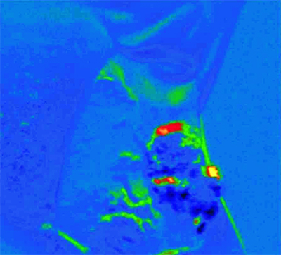 Mapping cancer: blue denotes healthy tissue; red pre-malignant; and yellow malignant.