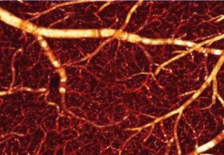 ODT of blood flow