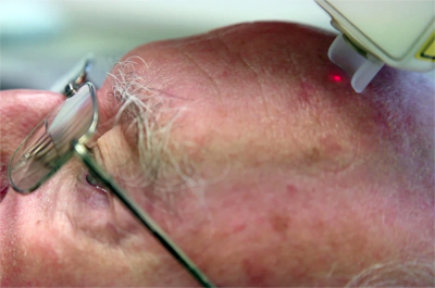 First clinical application is for the diagnosis of non-melanoma skin cancer.