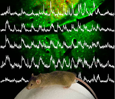 Neural activity recorded from neurons in the brain of an awake mouse.