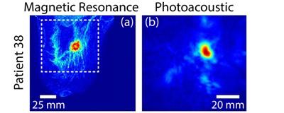 PA imaging and MRI comparison