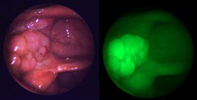 EM Imaging's optical agents visualize pathology in vivo.