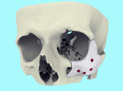 Xilloc's CT-Bone is described as