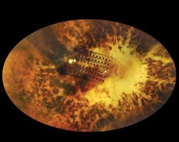 The Argus II retinal prosthesis