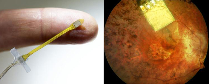 Retina Implant's microchip is implanted below the retina, in the macular region where light-sensitive photoreceptor cells are located.