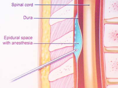 Positioning an epidural needle is critical for effective pain relief.