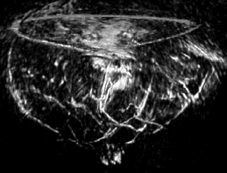 Optoacoustic imaging of breast cancer