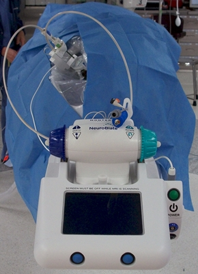 Monteris' NeuroBlate system