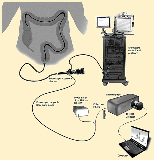 Improved diagnosis: Integrated Raman and endoscope instrumentation for in vivo subject measurement.