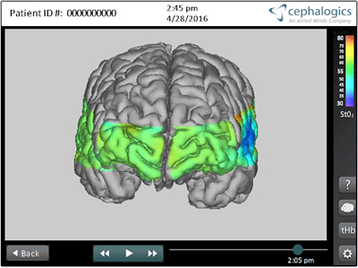 Cephalogics' approach eliminates obscuring effects of biological tissues around the brain.