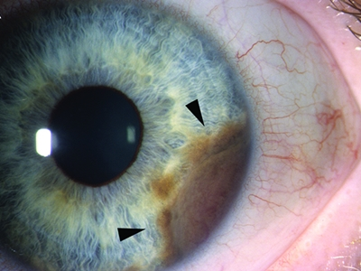 Uveal melanoma: clinical presentation