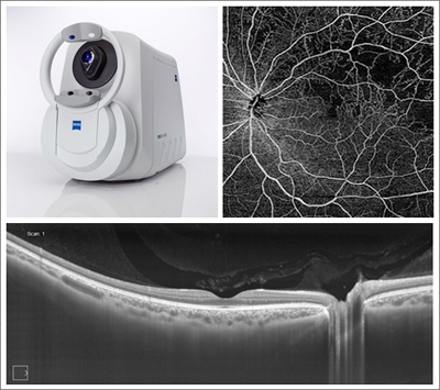Eye resolution: Zeiss Plex Elite 9000 Swept-Source OCT and retina images.
