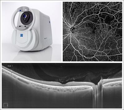 Eye resolution: Zeiss Plex Elite 9000 Swept-Source OCT and retina images.