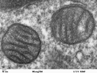 Mitochondria seen by SEM: Photothermal imaging offers an alternative