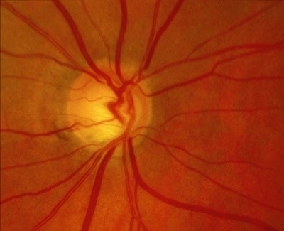 Glaucoma nerve damage