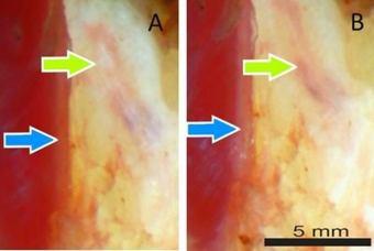 Easier to identify: nerves under polarized light