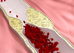 Peripheral Artery Disease.