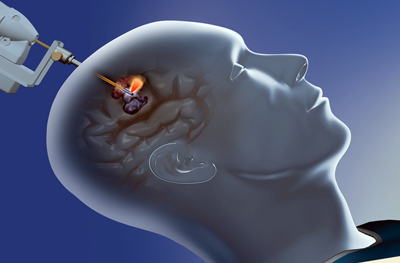 Brainwave: Monteris's NeuroBlate System offers comprehensive laser ablation.