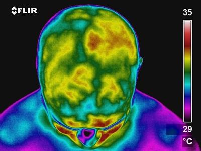 Brain thermometry