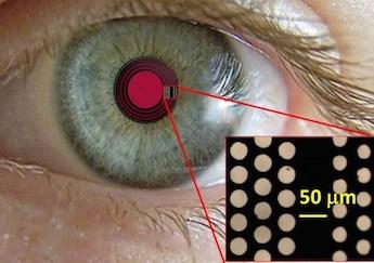 Hole story: treating presbyopia