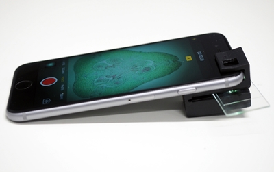 iPhone with clip-on microscope