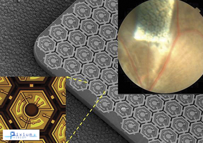 Sub-retinal miniaturized wireless photovoltaic implant.