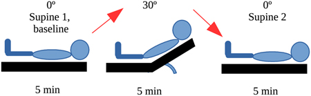 Protocol of the different head-of-bed position changes. (Click for more information)